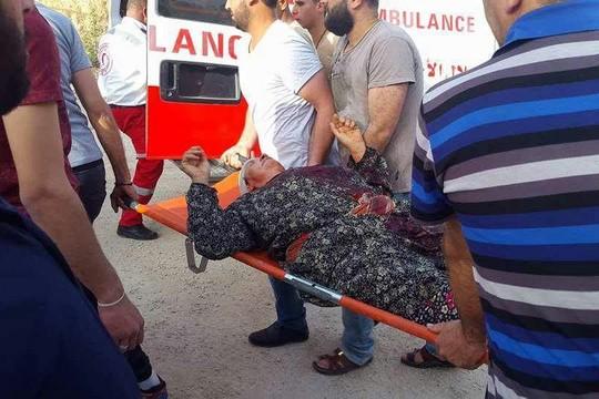 אשה ]לסטינית נפצעה באורח בינוני בראשה כתוצאה ממתקפה של מתנחלים על הכפר (צילום באדיבות רבים לזכויות אדם)