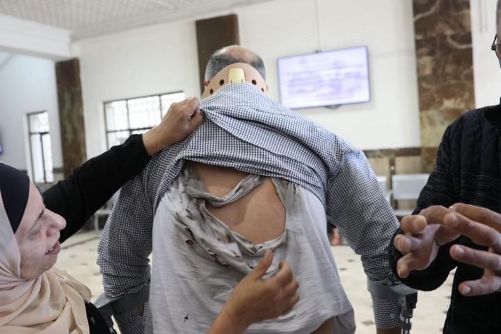 סימני החבלה על גבו של אבו חומוס (צילום: אורן זיו)