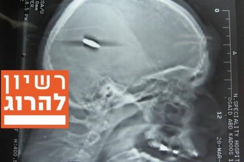 צילום רנטגן של ראשו של אסוייד קאדוס מבית החולים בשכם. לא כדור גומי. מתוך תיק החקירה