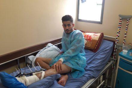 פואד אבו לבדה בבית החולים (צילום: רכאן עבד אלרחמאן)