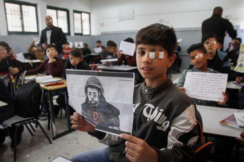 """ממיטתו בביה""""ח, הצלם שאיבד עין מירי מג""""ב הפך לסמל"""